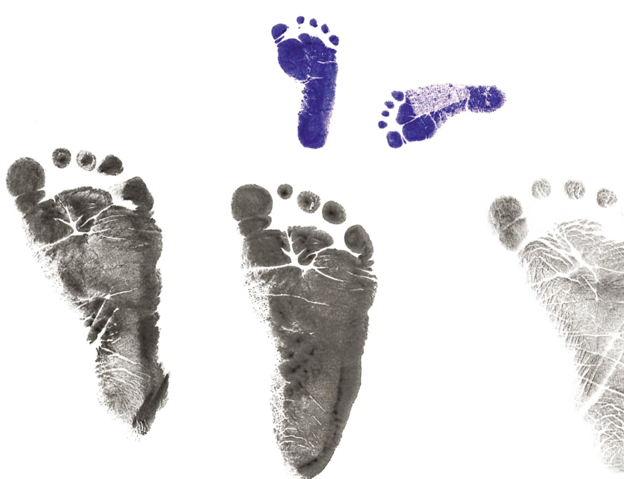 Nas imagens do alto, os pés de Arthur ao nascer (3,7 cm) comparados a pés de recém-nascidos de tamanho e peso normais. Duas vidas