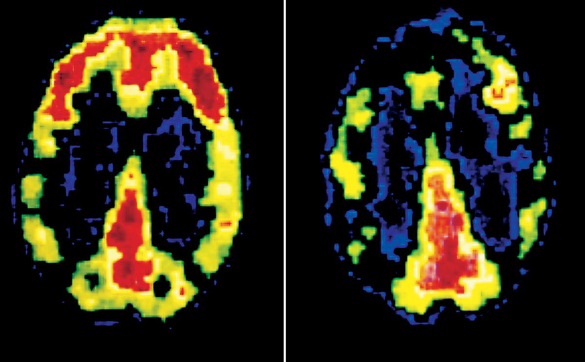 Pesquisa do Dr. Adrian Raine, PhD, chefe do Departamento de Criminologia da Universidade da Pensilvânia, nos Estados Unidos, mostra a tomografia do cérebro de um indivíduo normal (à esquerda) comparada com a de um assassino (à direita), que apresenta baixa atividade metabólica no córtex pré-frontal pela ausência de pontos vermelhos e amarelos